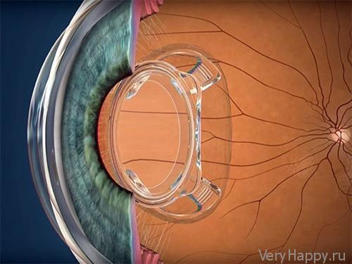 Бионическая линза: очки нам больше никогда не понадобятся